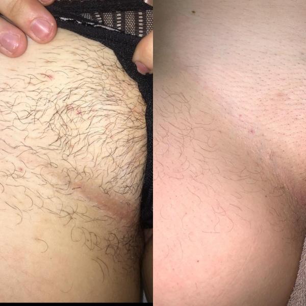 Bikini Line Laser Hair Removal