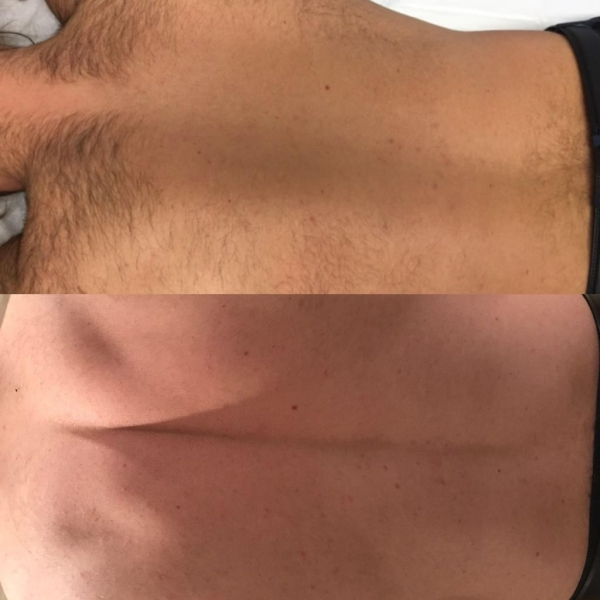 Mens Back Laser Hair Removal