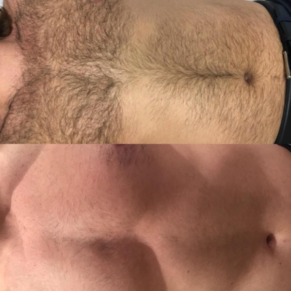 Mens Chest Laser Hair Removal